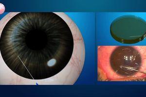 Mổ mắt cận thị bằng phương pháp Lasik